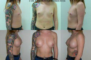 antes y despues aumento de pecho