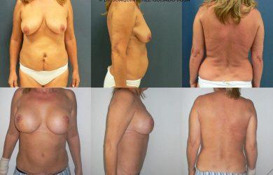 abdominoplastia cordoba