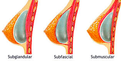 Tipos Colocación protesis mamarias