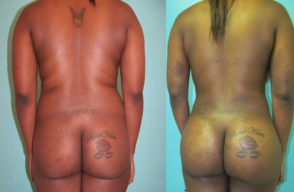Gluteoplastia antes y después