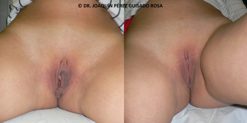Foto Antes y Después Cirugía Intima Femenina