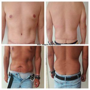 abdominoplastia almería