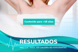 Resultados de cirugía en Aumentos de Pecho en España