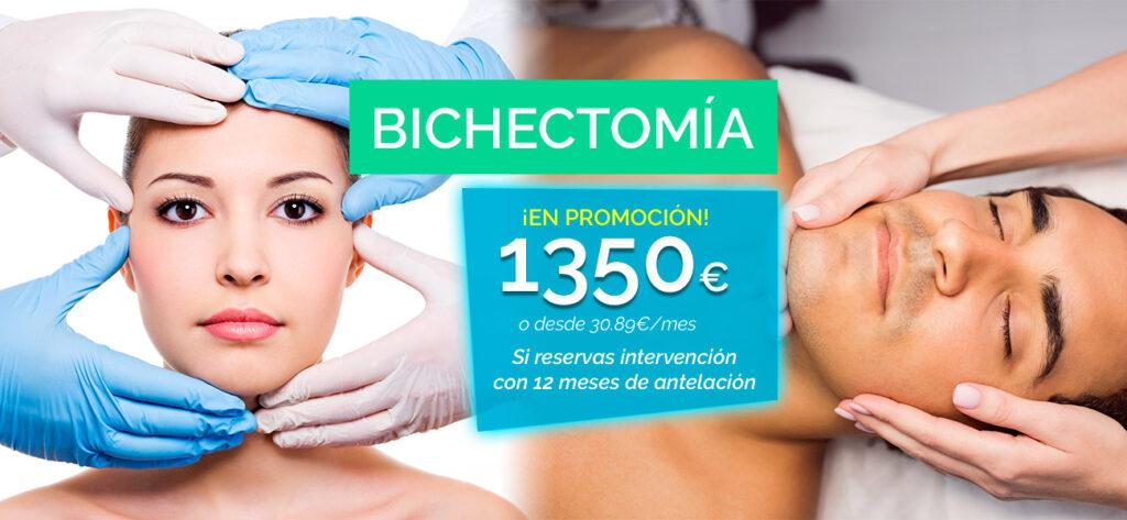 bichectomia en oferta