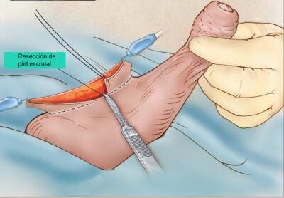eliminación del la piel escrotal sobrante